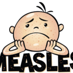 A Comeback for Measles?